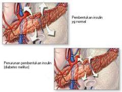 Obat Tradisional Diabetes Melitus